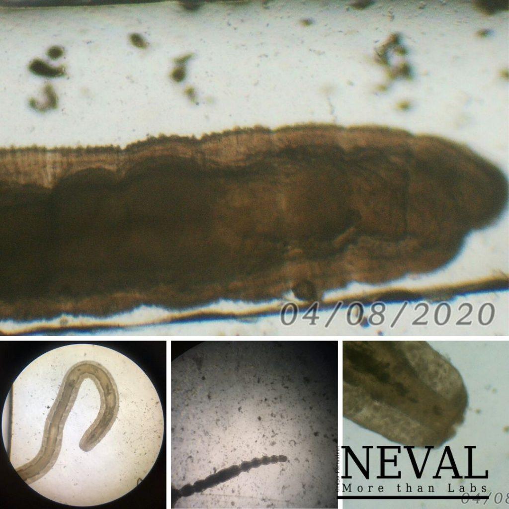 oligoquetos microscopio